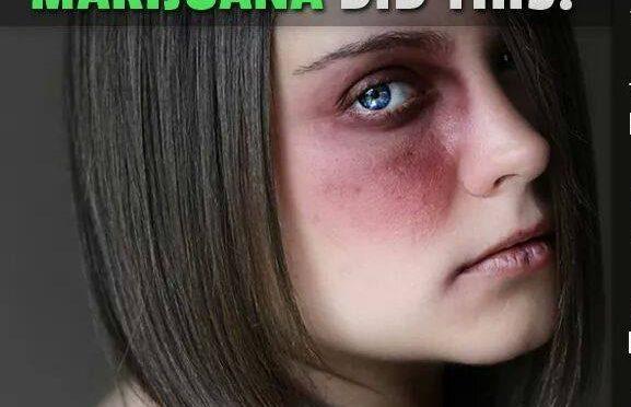 Marijuana Use Leads to Domestic Violence Victims